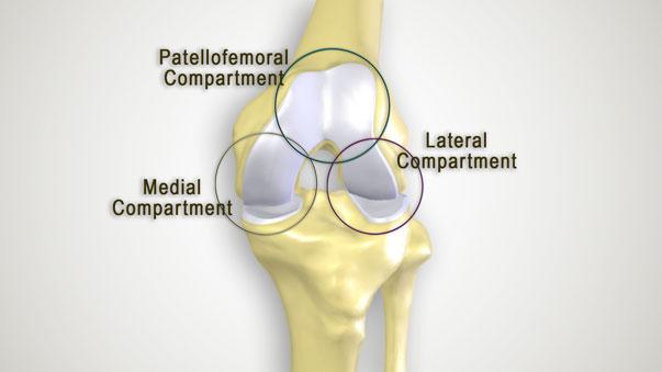 Knee-Arthritis-1-HAI