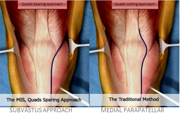 Knee-Muscle-Sparing-1-HAI2